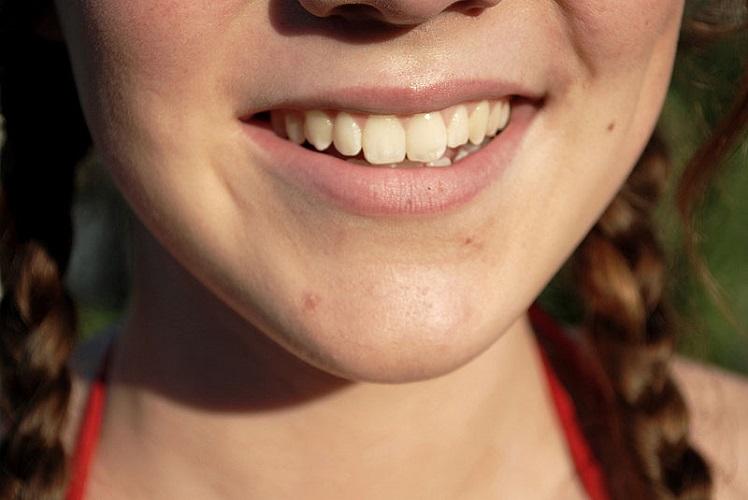 213 girl's smile