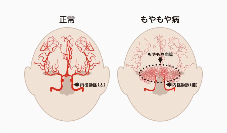 もやもや 病 手術 もやもや病 – 脳神経外科教室 京都大学医学部附属病院