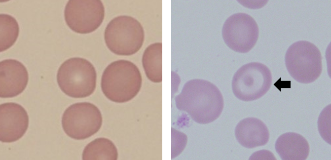 Thalassemia article 0